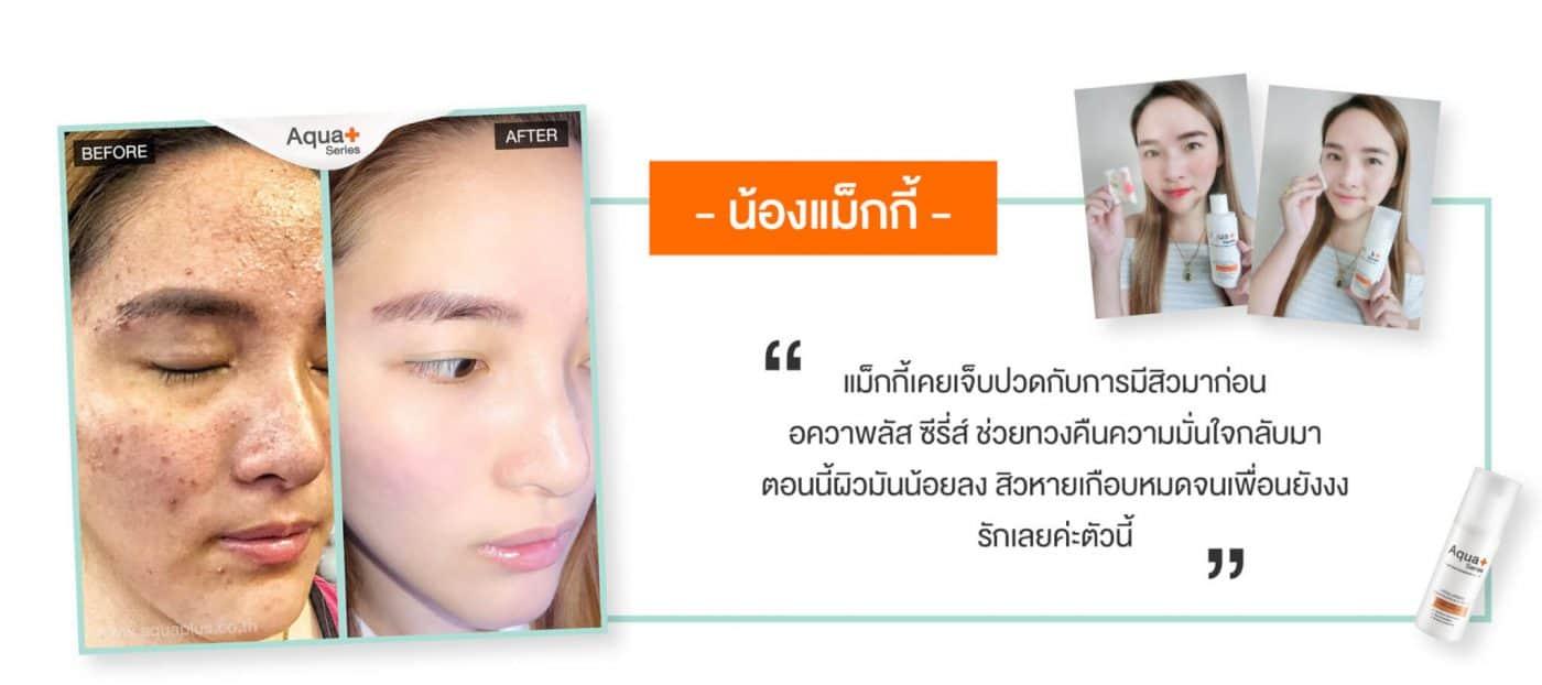 แนะนำโฟมล้างหน้าสำหรับรักษาสิวโดยเฉพาะ